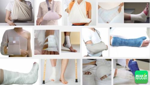 Gãy xương gây bất tiện trong hoạt động của người bệnh