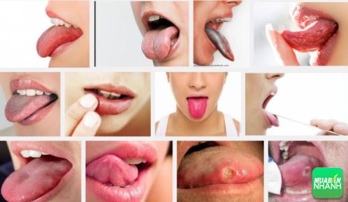 Nếu xuất hiện dấu hiệu ung thư lưỡi bạn nên đi khám ngay