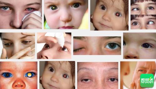 Ung thư mắt ảnh hưởng trực tiếp đến đời sống sức khỏe cũng như sinh hoạt của bạn