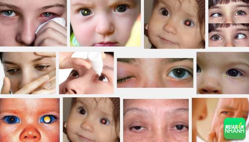 Nguy cơ bạn đang mắc phải bệnh ung thư mắt khi có những dấu hiệu sau, 123, Phương Thảo, Cẩm Nang Sức Khỏe, 28/09/2016 17:37:10