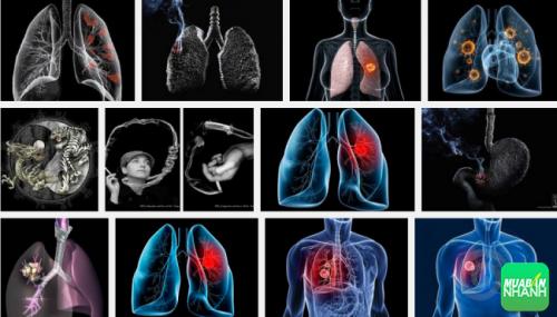 Ung thư phế quản là căn bệnh vô cùng nguy hiểm