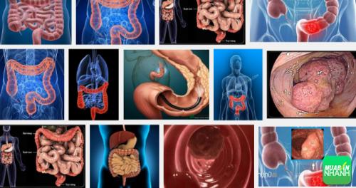 Bệnh ung thư ruột già đang có số lượng gia tăng
