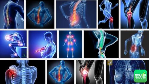 Bệnh ung thư xương hay gặp ở những xương dài như gần đầu gối