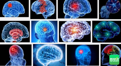 Bệnh u não có thể chữa trị nếu phát hiện kịp thời