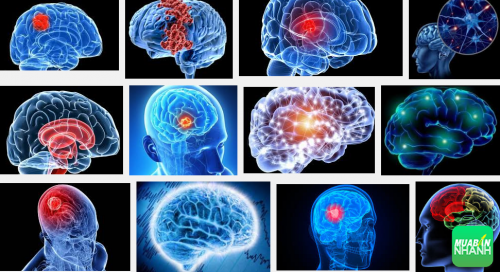 Dấu hiệu để bạn phát hiện u não nhanh chóng nhất, 142, Phương Thảo, Cẩm Nang Sức Khỏe, 30/09/2016 13:58:45