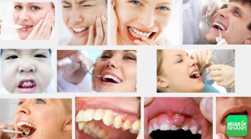 U răng là căn bệnh mà mọi người rất dễ mắc phải