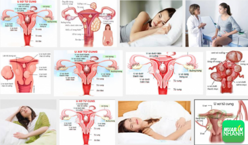 U xơ tử cung là căn bệnh thường mắc phải của chị em phụ nữ