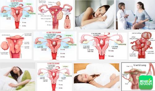 Phụ nữ cần chú ý ngay đến các dấu hiệu bệnh u xơ tử cung, 158, Phương Thảo, Cẩm Nang Sức Khỏe, 03/10/2016 09:33:21
