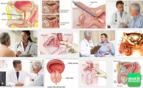 U xơ tuyến tiền liệt ảnh hưởng trực tiếp đến sức khỏe sinh sản nam giới