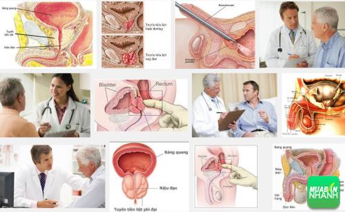 Phái mạnh nhất định phải biết những dấu hiệu của bệnh u xơ tuyến tiền liệt, 161, Phương Thảo, Cẩm Nang Sức Khỏe, 03/10/2016 11:08:25