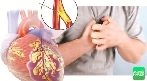 Lời cảnh báo sức khỏe khi xuất hiện dấu hiệu bệnh mạch vành, 174, Phương Thảo, Cẩm Nang Sức Khỏe, 04/10/2016 10:13:29