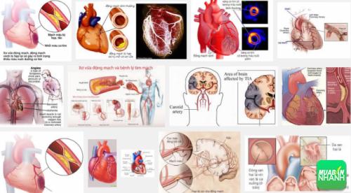 Bệnh tim thiếu máu cục bộ có nhiều triệu chứng khác nhau