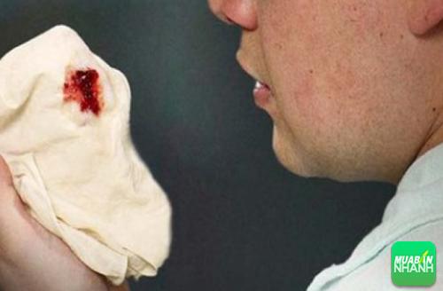 Ho ra máu là một trong những biểu hiện bất thường của bệnh ung thư.