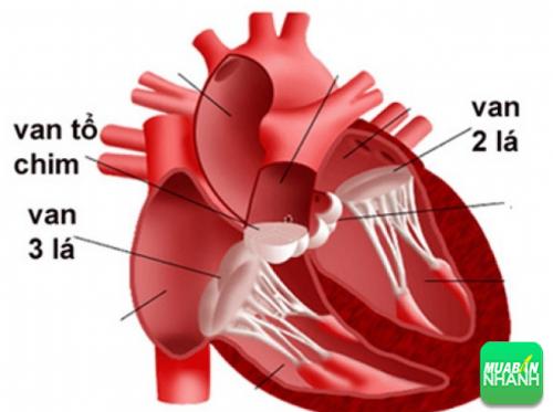 Hở van 2 lá là bệnh về tim phổ biến hiện nay