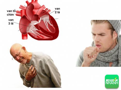 Tim của bạn đang bị đem dọa bởi triệu chứng bệnh hở van hai lá, 214, Phương Thảo, Cẩm Nang Sức Khỏe, 07/10/2016 11:42:41