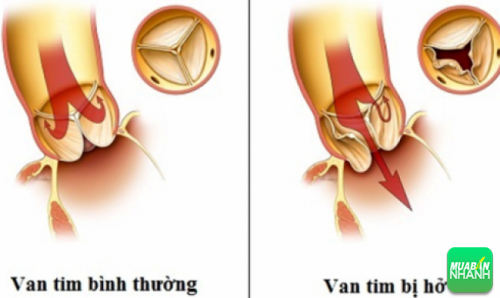 Hở van 3 lá là một rối loạn trong đó van ba lá không đóng đủ chặt làm cho máu chảy ngược