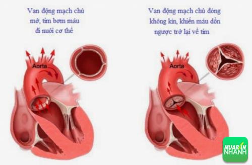 Hở van động mạch chủ do thấp gây nguy cơ tử vong cao