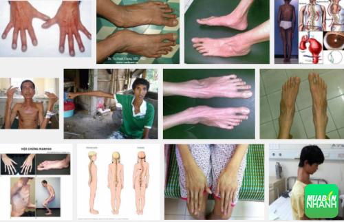 Người mắc bệnh Marfan thường có cơ thể ốm yếu, gầy gò