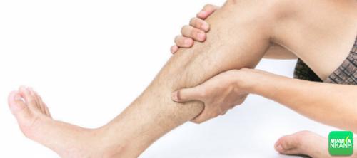 Huyết khối tĩnh mạch sâu thường biểu hiện sưng tấy ở chân