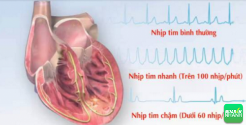 Nhịp tim chậm là trường hợp bệnh có dấu hiệu nhận biết khá mờ nhạt, đòi hỏi người bệnh phải thật sự quan tâm đến sức khỏe của mình