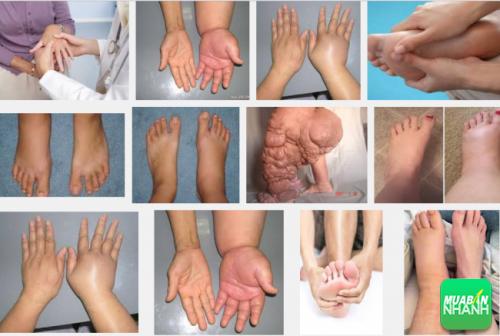 Phù bạch huyết là căn bệnh khiến cánh tay và chân bị sưng phù
