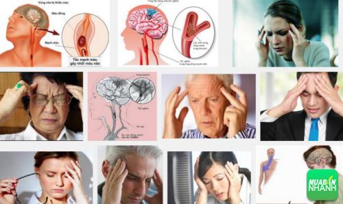 Số lượng người mắc bệnh rối loạn tuần hoàn não đang gia tăng