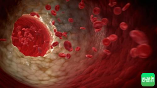 Nếu bạn có huyết áp cao, áp lực máu dần dần sẽ tác động lên động mạch và gây ra một loạt các vấn đề