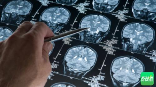 Đột quỵ xảy ra khi một phần của não thiếu oxy và dưỡng chất dẫn đến cái chết của tế bào