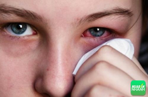 Chảy máu trong mắt do các mạch máu bị tổn thương