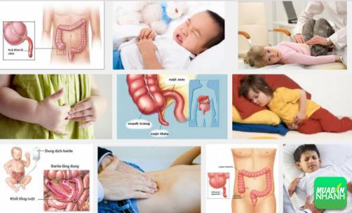 Tình trạng trẻ em mắc phải bệnh viêm ruột thừa đang ngày càng gia tăng