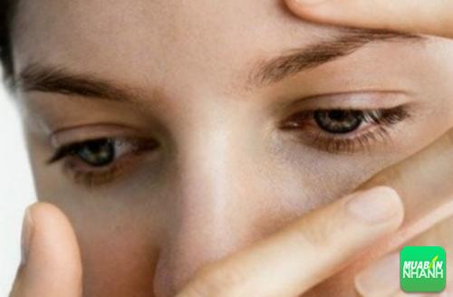 Bệnh gây ra triệu chứng nhìn mờ ở hai mắt hoặc có thể mất thị lực một mắt