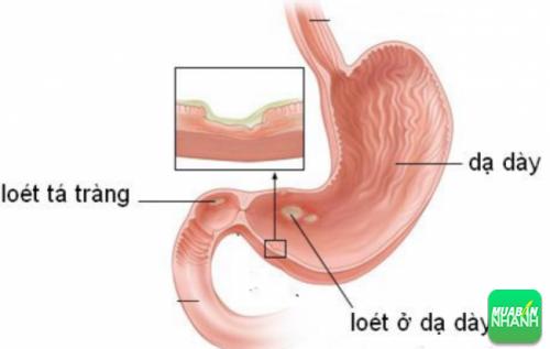 Loét dạ dày tá tràng có thể làm suy yếu niêm mạc dạ dày, dẫn đến viêm loét dạ dày
