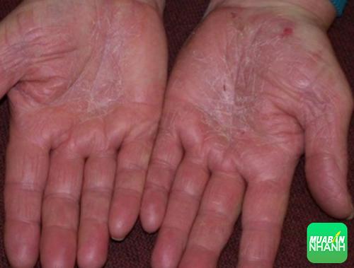 Á sừng gây ra những tổn thương bề mặt da