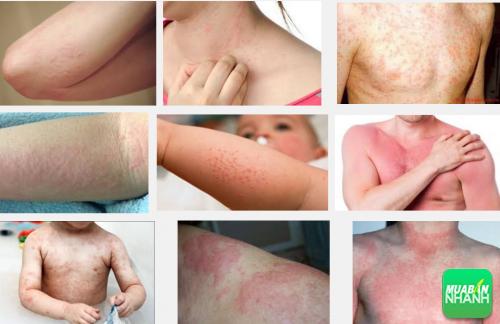 Đừng chủ quan với những triệu chứng tổn thương da do dị ứng, 270, Phương Thảo, Cẩm Nang Sức Khỏe, 19/10/2016 13:49:20