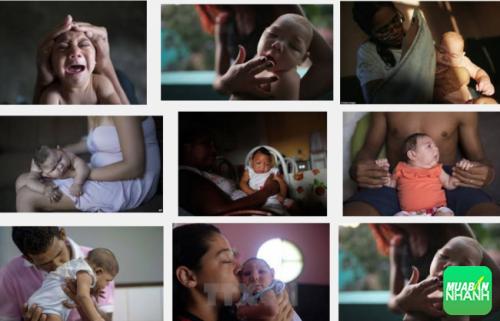 Bệnh Zika gây ra những biến chứng đầu nhỏ ở trẻ em nếu mẹ mang thai mắc phải bệnh