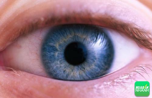 Mắt của bệnh nhân bị Glaucoma