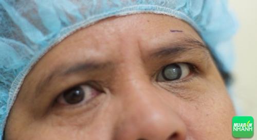 Bệnh nhân thường bị đục thủy tinh thể mắt bên trái