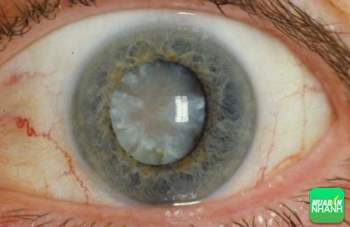 Hình ảnh mắt của bệnh nhân mắc bệnh thoái hóa hoàng điểm