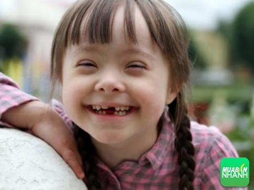 Trẻ mắc phải hội chứng down thường có vẻ bề ngoài giống nhau