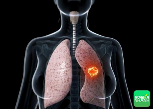 Nếu tình trạng ho kéo dài và biểu hiện khó thở có thể bạn đang có dấu hiệu ung thư phổi