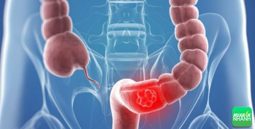 Ung thư trực tràng có thể phát hiện qua các biểu hiện lạ của cơ thể.