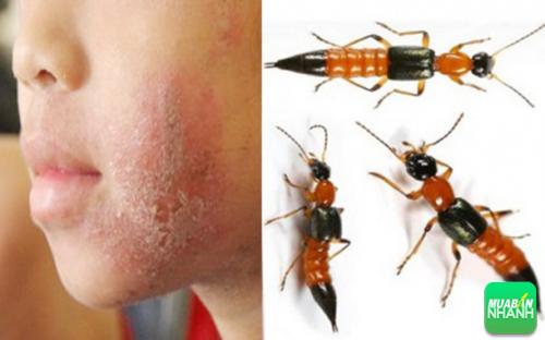 Cảnh báo loại côn trùng có độc hơn cả rắn hổ mang đang tồn tại xung quanh bạn, 291, Phương Thảo, Cẩm Nang Sức Khỏe, 24/10/2016 10:06:56