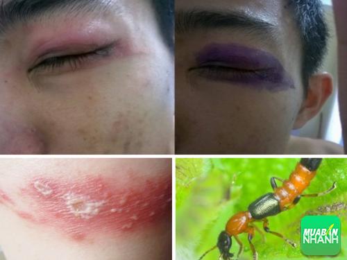 Bạn cần biết tác hại kiến ba khoang gây ra trên cơ thể, 294, Phương Thảo, Cẩm Nang Sức Khỏe, 17/04/2017 08:58:18