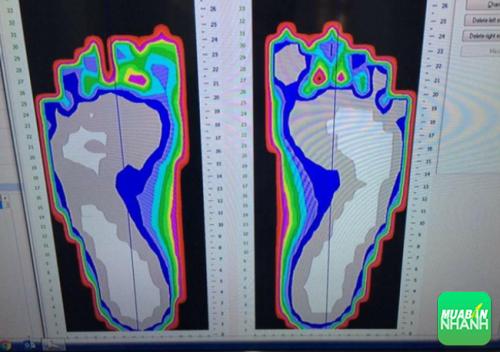 Hình ảnh scan bàn chân của bố Tuva giống như người bình thường.