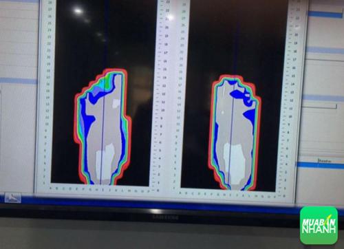 Hình ảnh bàn chân khác lạ, cho thấy bàn chân Tuva bị bàn chân bẹt rõ ràng.