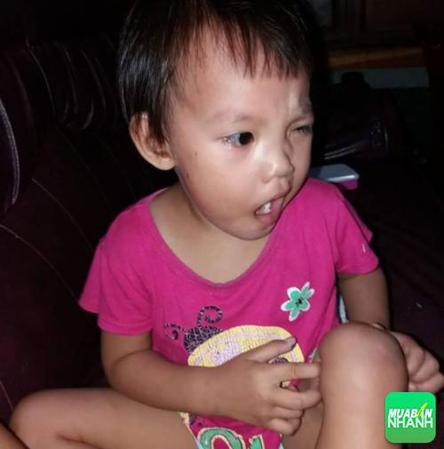 Mặt bé Trà My bị lệch hẳn sang một bên khiến bé rất khỏ mở mắt, miệng cũng bị méo.