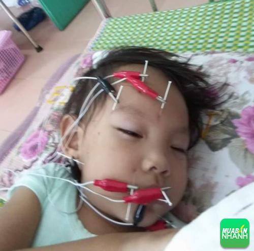 Bé Trà My được điều trị bằng châm cứu bên mặt bị lệch kết hợp bấm huyệt tại bệnh viện.