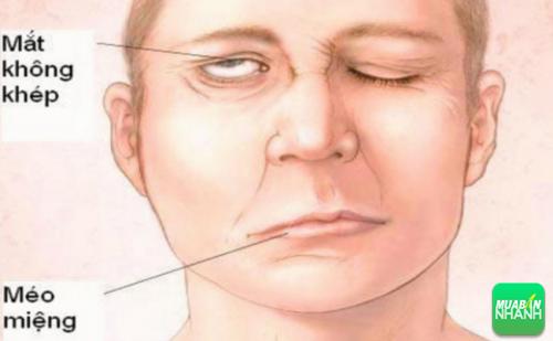 Liệt dây thần kinh số 7 ngoại biên rất dễ mắc phải nếu bị nhiễm lạnh nặng.
