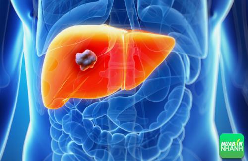 Ung thư gan nguyên phát là một trong những bệnh ung thư phổ biến trong thời gian gần đây.