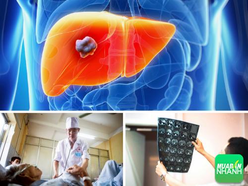 Phát đồ điều trị ung thư gan giúp vị bác sĩ quân y phát hiện bệnh sau 9 năm vẫn sống khỏe mạnh, 308, Phương Thảo, Cẩm Nang Sức Khỏe, 26/10/2016 13:58:49